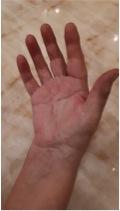 Hand deutlich abgeschwollen